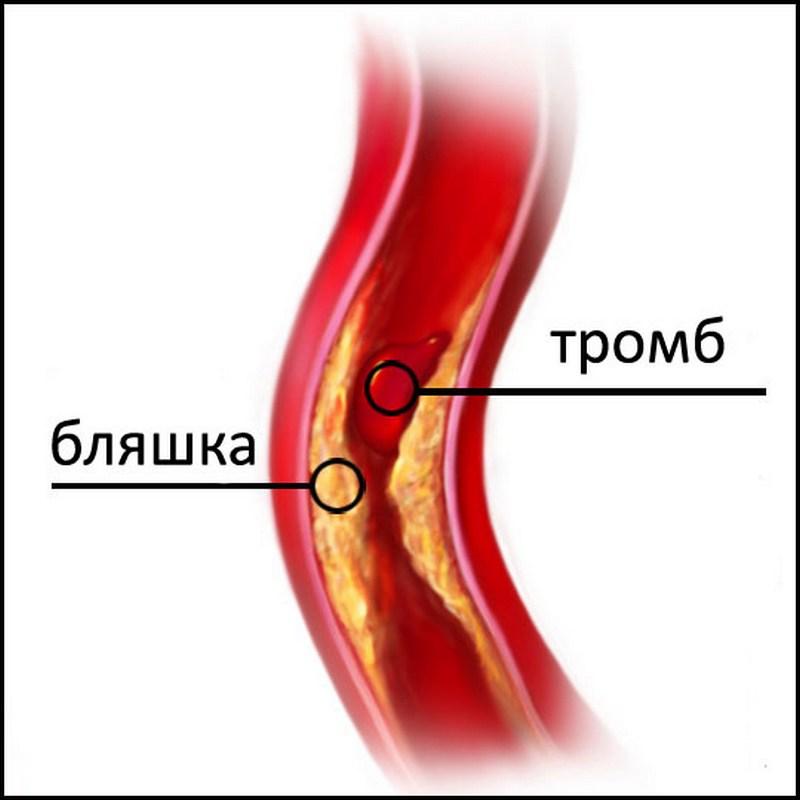 Аневризма аорты брюшной полости: виды, причины возникновения ...