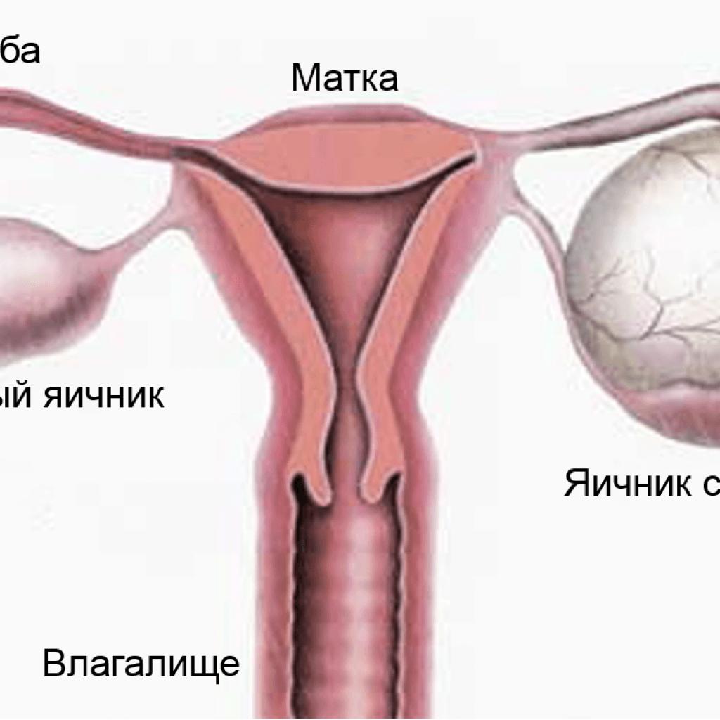 Киста яичника от чего появляется симптомы и лечение женщины