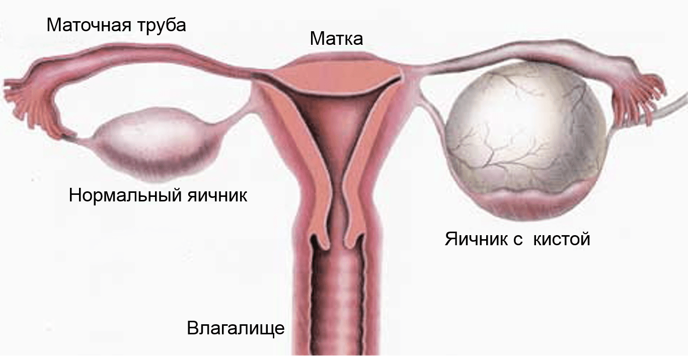 Серозная киста яичника и методы ее лечения