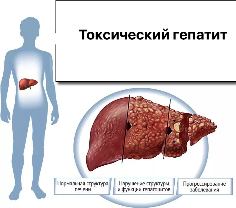 Диета при токсическом гепатите печени