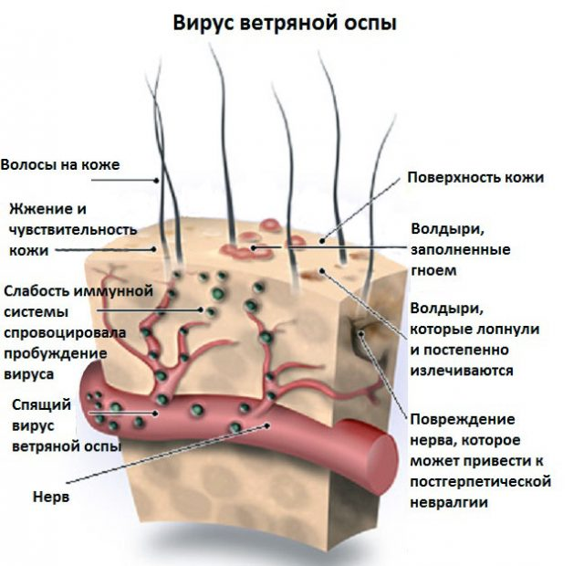 Действие вируса ветряной оспы на кожу человека