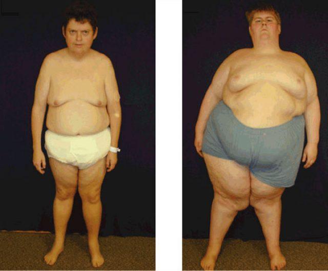 формирование тела мужчины по женскому типу