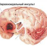 субарахноидальный инсульт