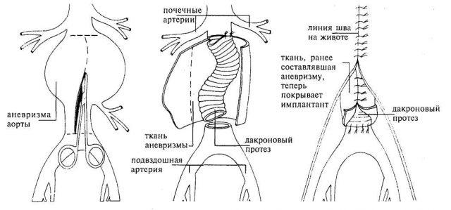 Внутримешотчатое протезирование аорты