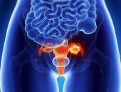 Из-за чего образуется тератома яичника?