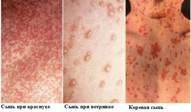 Корь: симптомы, фото, уей и взрх, прививка, лечение