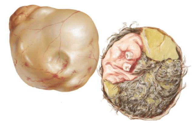 Тератома с волосами
