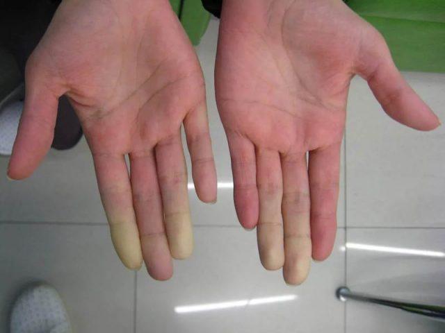 Руки с побледневшими пальцами при болезни Рейно после холодовой пробы