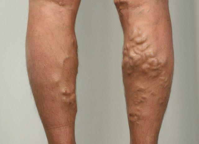 Варикозно расширенные вены ног