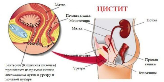 Схема развития цистита