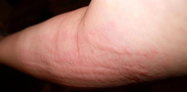 Сыпь на руке (крапивница)