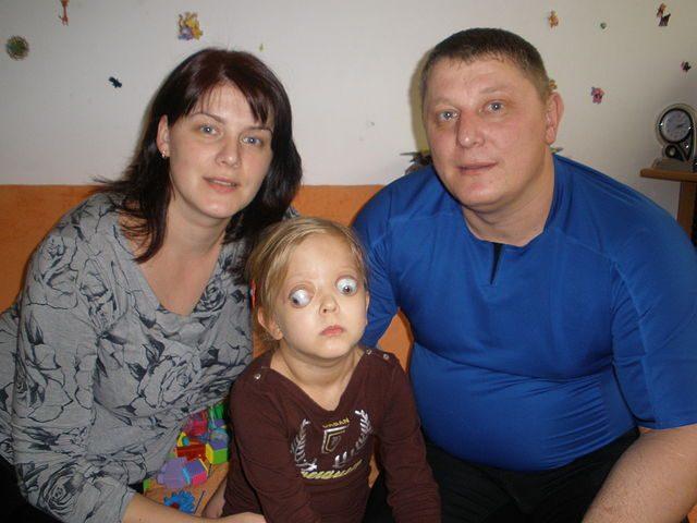 Девочка, страдающая экзофтальмом, с родителями