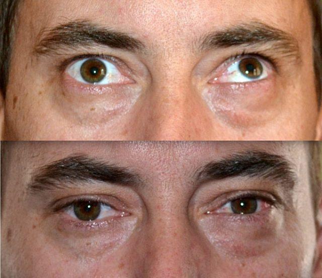 Взгляд человека до и после операции по коррекции косоглазия