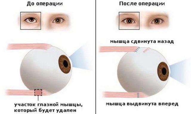 Схема проведения резекции глазодвигательной мышцы