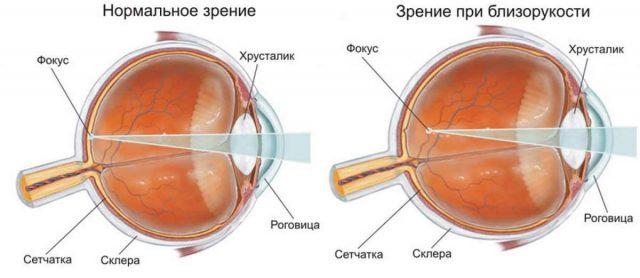 Положение фокуса при эмметропии и миопии