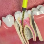 Пломбировка зубного канала