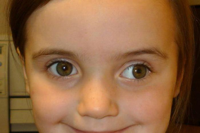показывают после окклюзии стали косить оба глаза длиннее