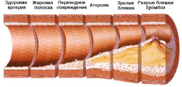 Развитие атеросклероза