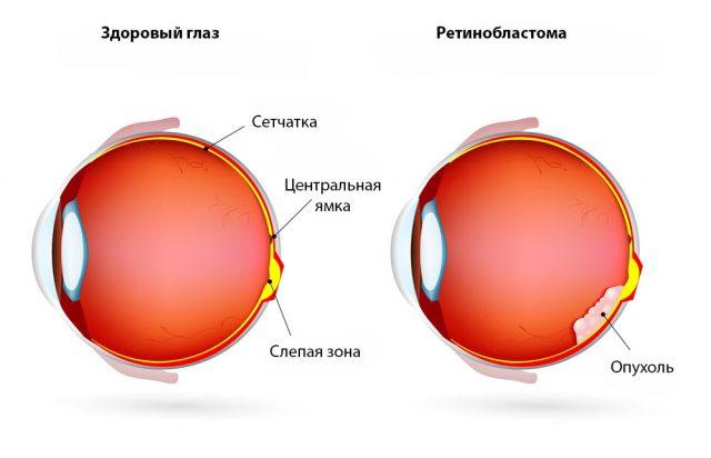 Схематическое изображение ретинобластомы