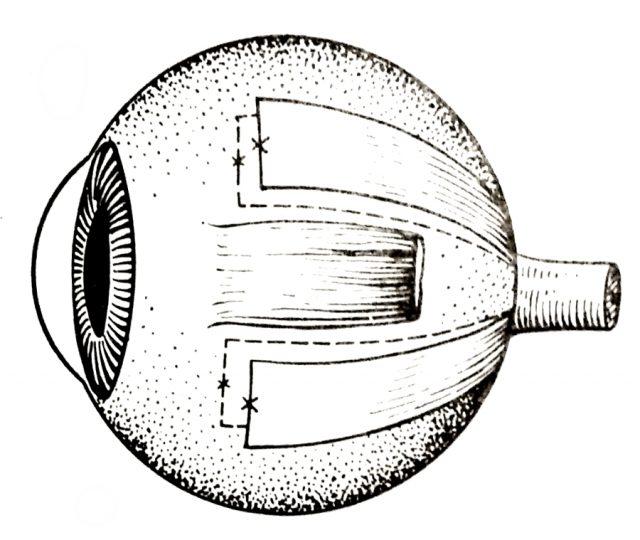 Меридиональная склеропластика