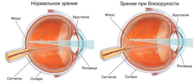 Нормальный и близорукий глаз