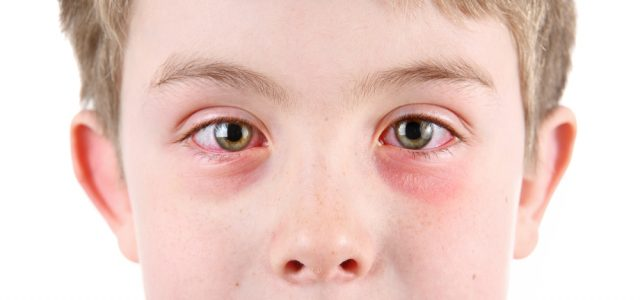 Отёки глаз у мальчика