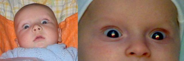 Симптом «заходящего солнца» у младенца