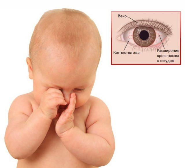 Беспокойство малыша при конъюнктивите