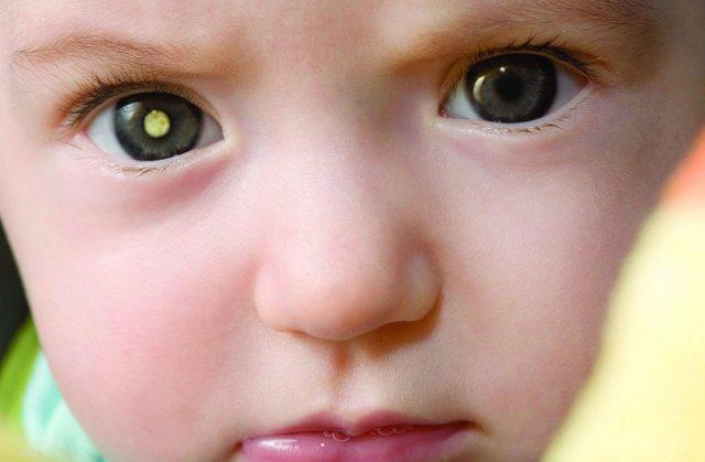 Односторонняя ретинобластома