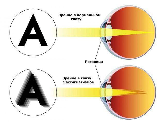 Схема астигматизма