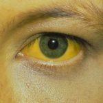 Желтизна склеры (наружной плотной оболочки глаза)