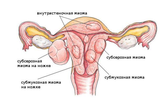 Классификация миом по их расположению относительно матки