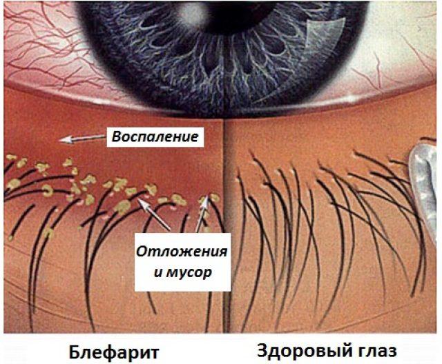 Чешуйчатый блефарит (схема)