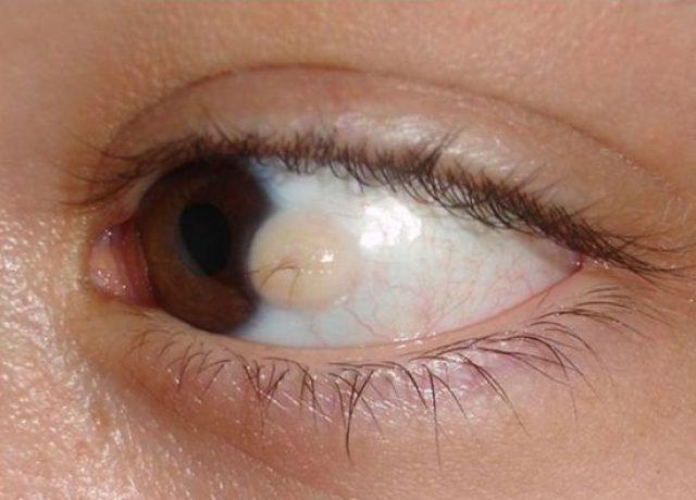 Дермоидная киста глаза
