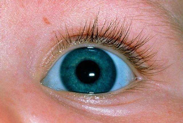 Голубая склера
