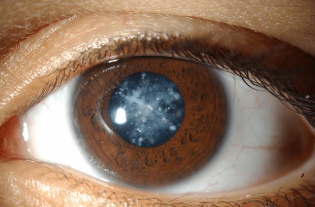 Помутневший хрусталик глаза