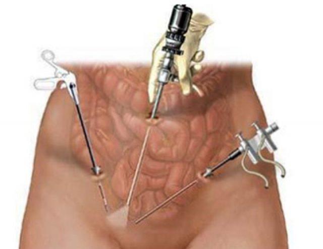 Лапароскопические инструменты введены в брюшную полость женщины