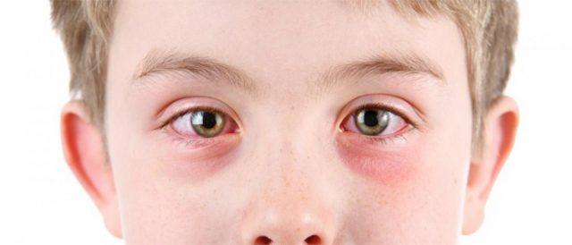 Покраснение белков глаз у мальчика