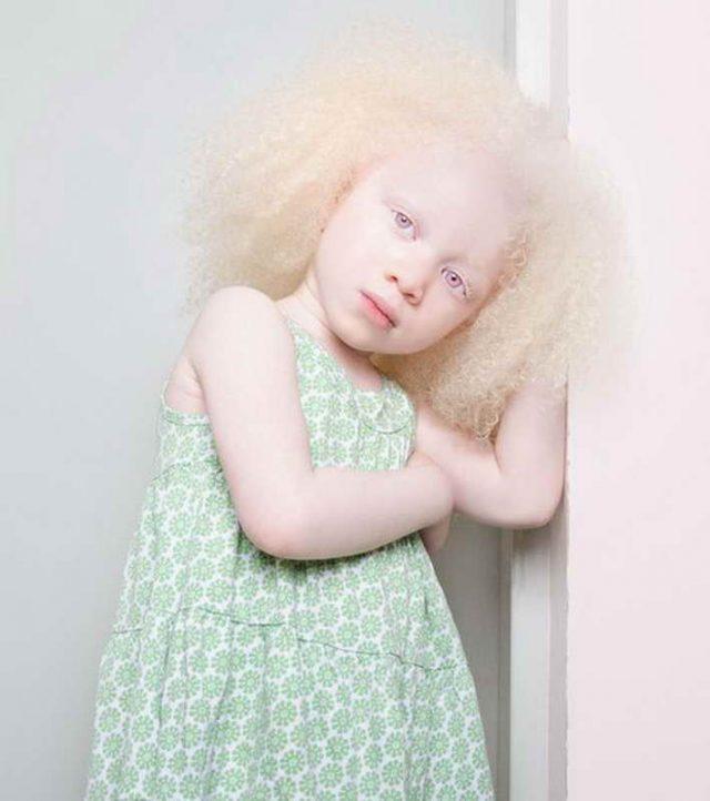 Ребенок-альбинос