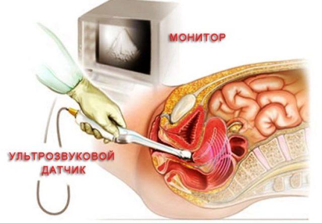 Рука врача с внутривлагалищным датчиком и внутренние половые органы женщины (схематически)