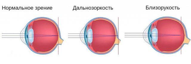 Схема формирования близорукости и дальнозоркости
