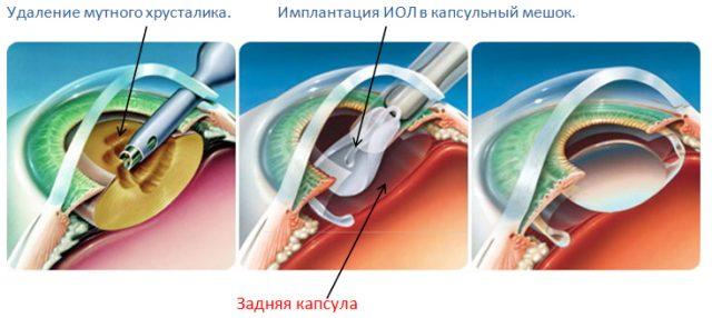 Схема операции при катаракте
