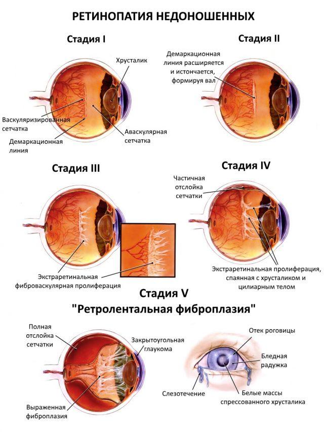 Схема стадий ретинопатии недоношенных
