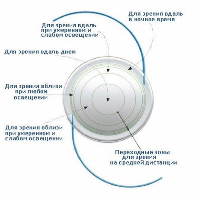 Схема строения мультифокальной линзы
