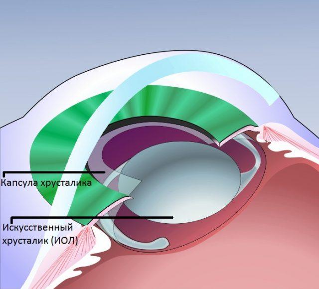 Схема установки афакичной линзы