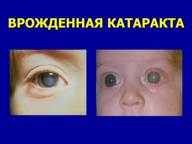 Врождённая катаракта