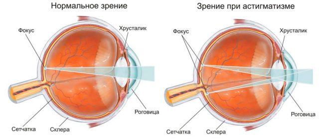 Зрение в норме и при астигматизме