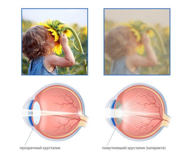 Зрение в норме и при катаракте