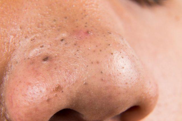 Чёрные точки на носу