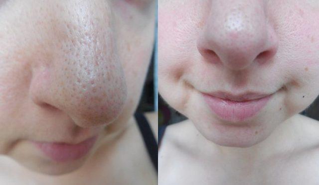 Фото до и после применения маски